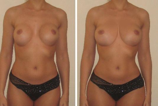 увеличение груди нулевого размера